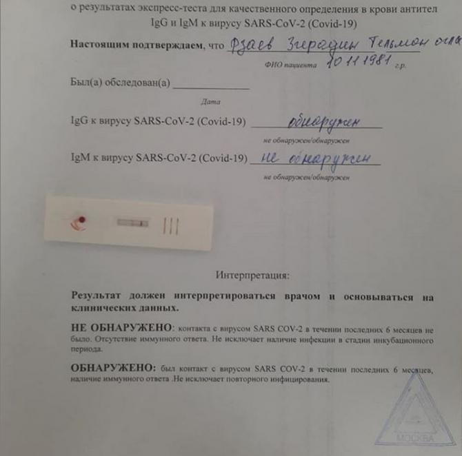 Zirəddin Rzayevdən koronavirus açıqlaması — FOTO